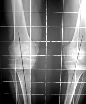 تشوه الهيكل العظمي للساق على شكل رُكْبةٌ فَحجاء