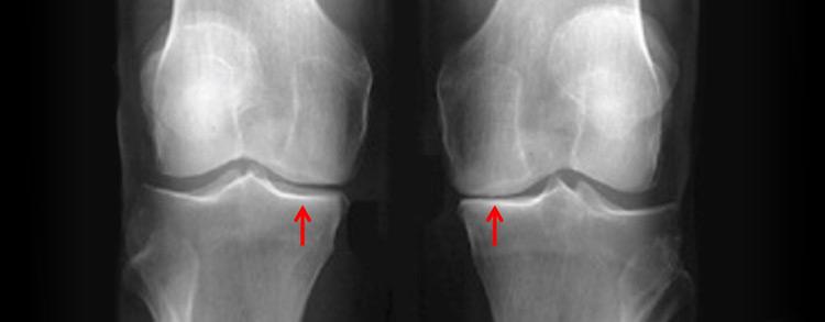 مبدأ القطع العظمي و استواء الركبة