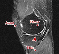 صورة بالرنين المغناطيسي تظهر آفة الهِلالَة المفصلية