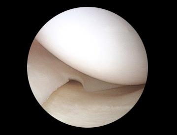 صورة بواسطة المنظار المفصلي لهِلالَة مفصلية سليمة